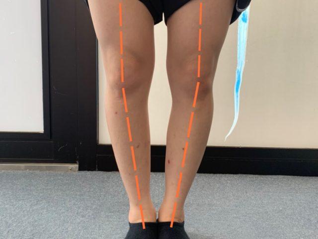 今の膝の症状は変形性膝関節症になるのでは? 新潟市西区整骨院